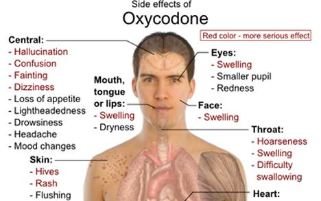 Oxycodone Addiction Image