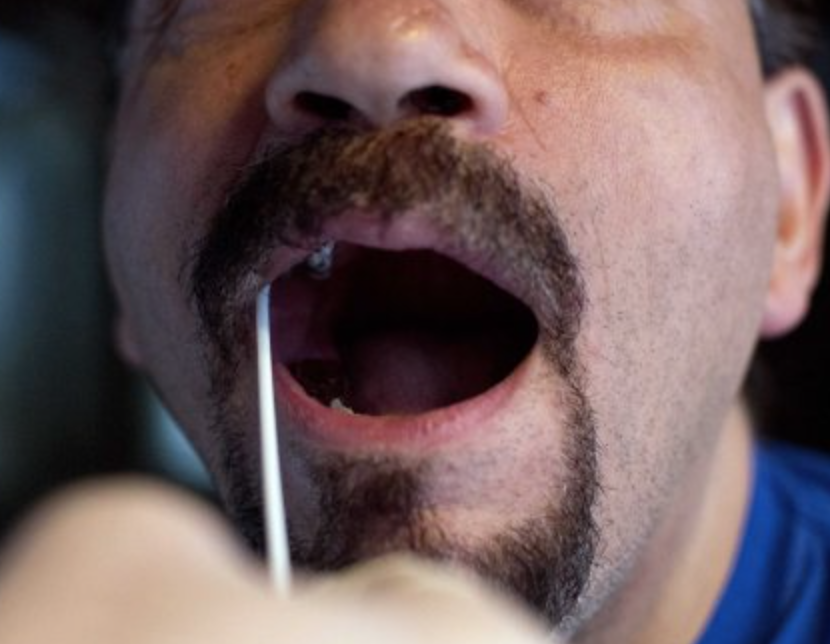 testing for drugs by swabbing your mouth